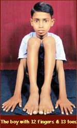 Devendra Harne has 12 fingers & 13 toes.
