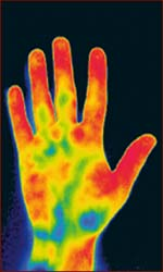 Infrared picture of the human hand: temperature distribution.
