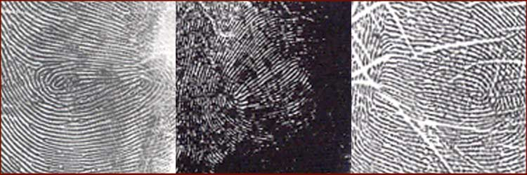 An impression from the hypothenar of 3 autistic people - showing a 'hypothenar composite whorl'.