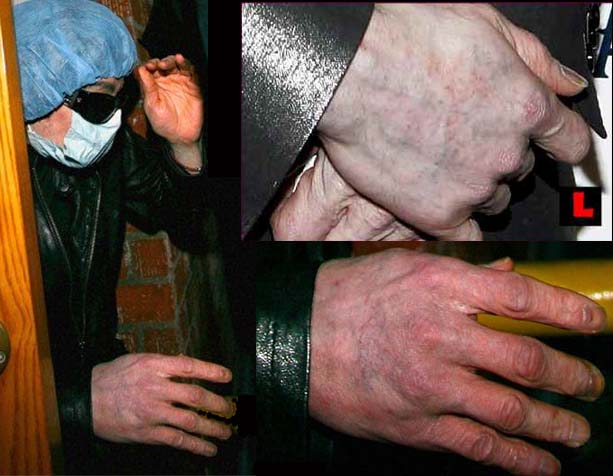 The right hand of Michael Jackson in 2009!