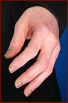 The left hand of Michael Jackson taken at the Guinness World Records event in 2006!
