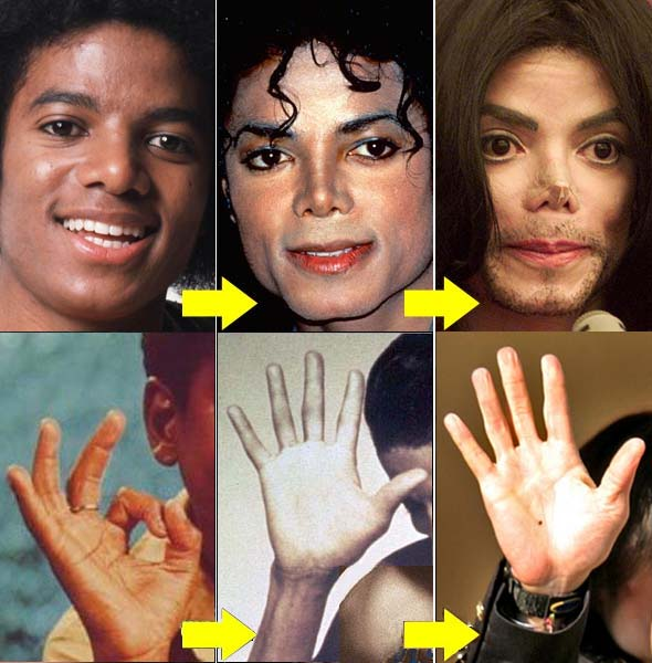Michael Jackson's hand deterioration over the years - especially his fingernails.