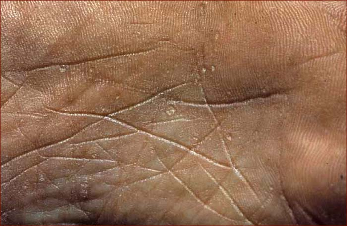 Palmar keratosis is often seen in bladder cancer &amp; lung cancer.