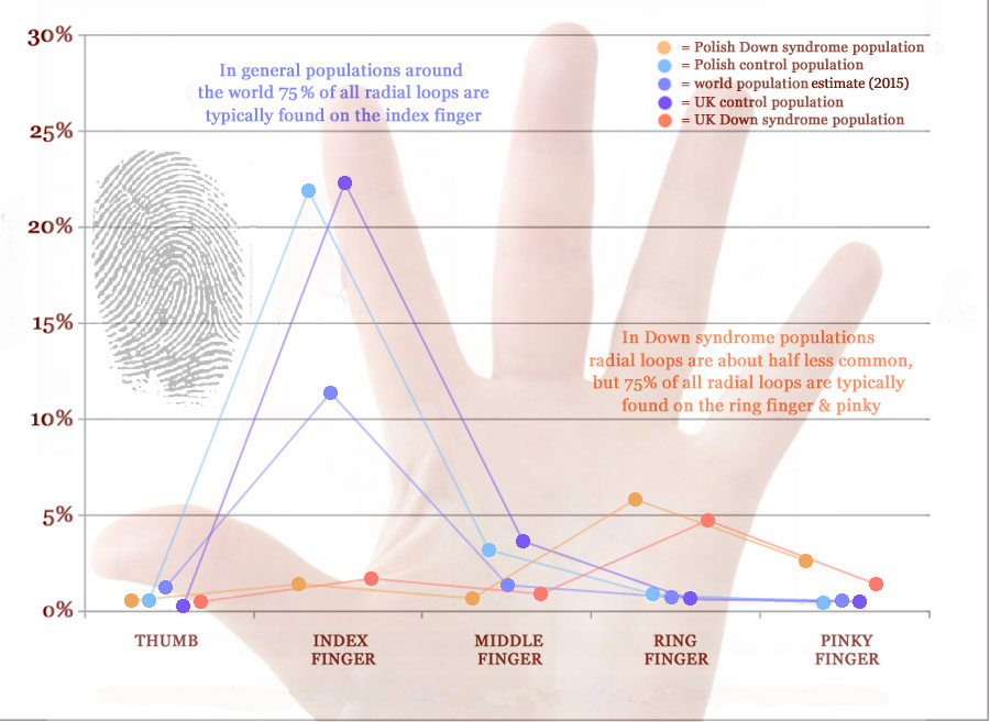 Radial loop fingerprint distribution across fingers in Down syndrome.