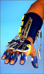 Saeboflex prosthetic hand.