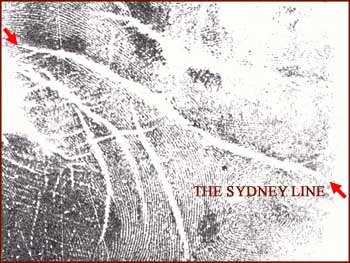 The Sydney line: a minor physical anomaly - an underestimated hand crease.