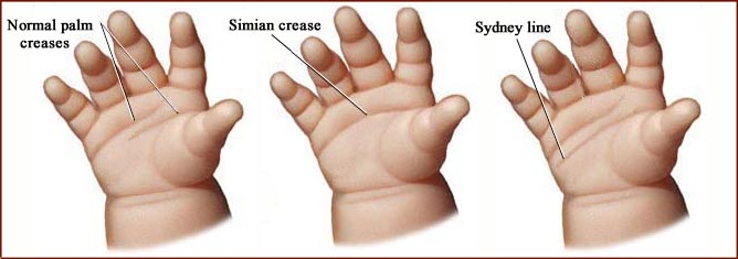The Sydney line & simian crease are like 'fraternal twins'! Sydney-line-simian-crease-hand-lines