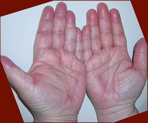 The hand-foot syndrome includes: a chronic inflammation of the palms, and possibly: missing fingerprints!