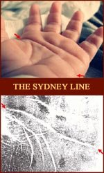 The Sydney line: a 'long head line', or 'extended proximal palmar crease'.
