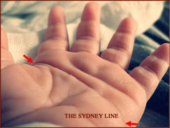 The Sydney line: a significant sign in Down's syndrome!