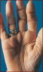 Example of a tripe hand palm: skin becomes thick and velvety white.