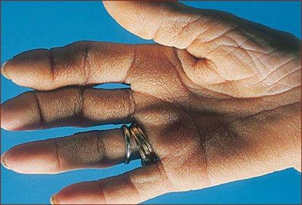 Hand skin