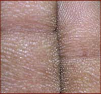 Hands on cancer: tripe palms & skin conditions.