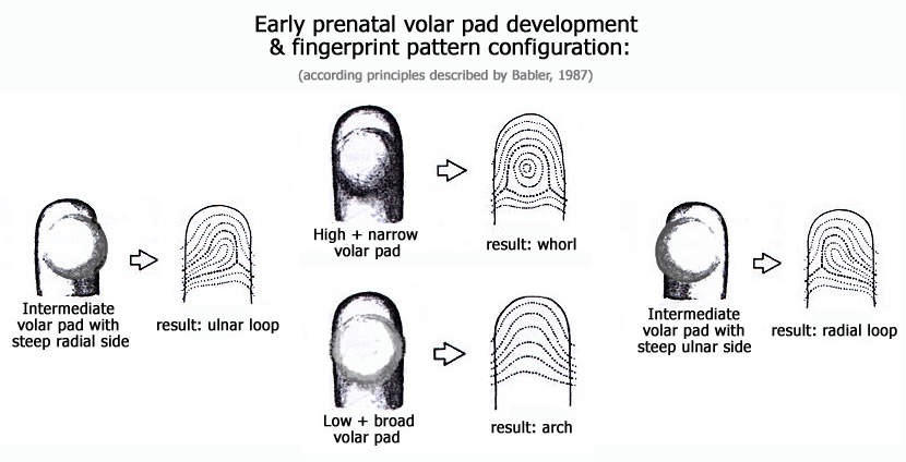 Early prenatal volar pad shape & fingerprint pattern configuration: arch, ulnar loop, radial loop & whorl.