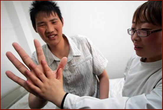 Doctors search for link between Palmistry & HIV
