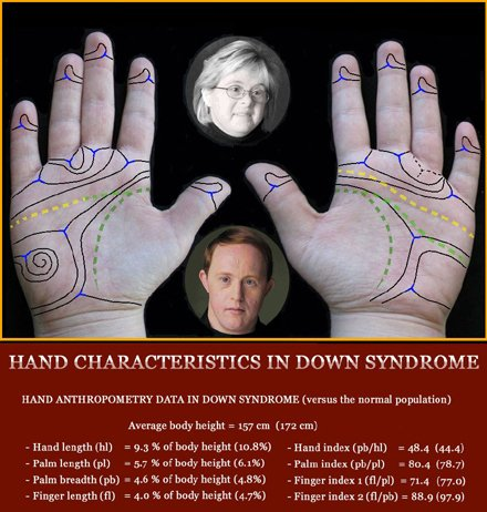 Phantom picture for the hand in Down syndrome (trisomy 21): hand anthropometry + dermatoglyphics + major palmar lines.