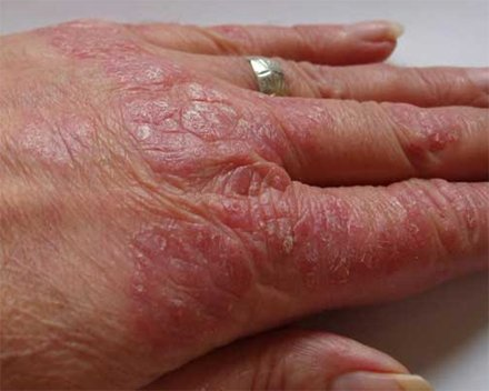 The hand in psoriasis: skin scales.