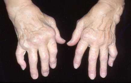 Hands affected with rheumatoid arthritis.