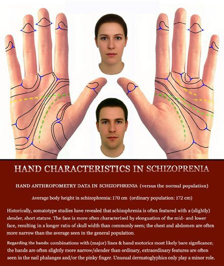 Phantom picture for the hand in schizophrenia: hand anthropometry + dermatoglyphics + major palmar lines.