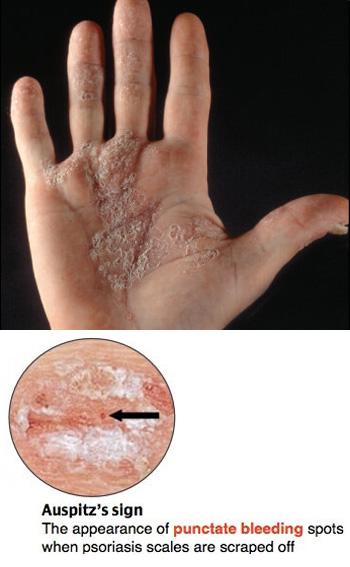 Auspitz sign: punctate bleeding spots below scales.