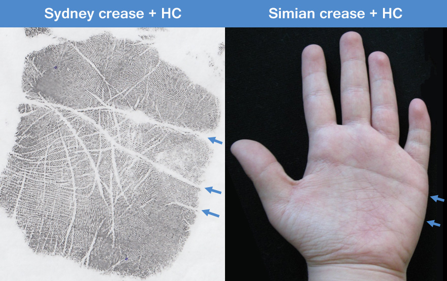 Down syndrome examples: hypothenar crease combined with Sydney crease / simian crease.