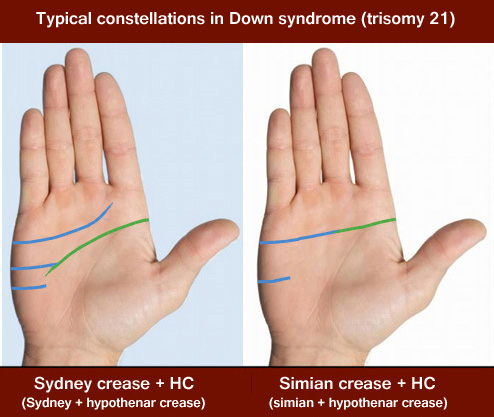 Typical constellations for the palmar transverse creases in Down syndrome: simian crease or Sydney crease combined with a hypothenar crease.