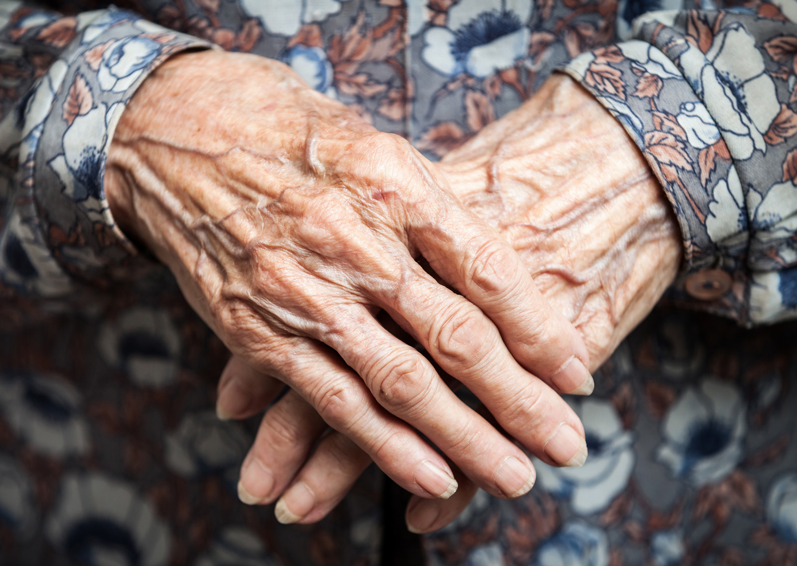 The hands of Emma Morano, last survivor of 19th century died at age 117!