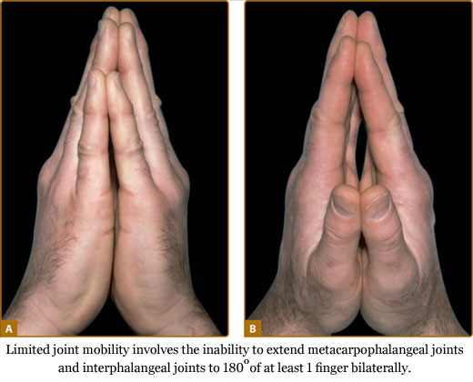 Limited joint mobility involves the inability to extend metacarpophalangeal joints and interphalangeal joints to 180 degrees of at least 1 finger bilaterally.