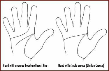 Simian line (simian crease).