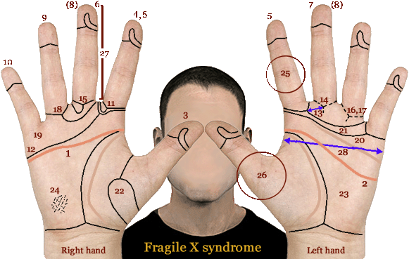 Phantom picture for the hand in fragile-X syndrome