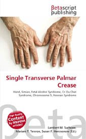 Single transverse palmar crease - beta publishing