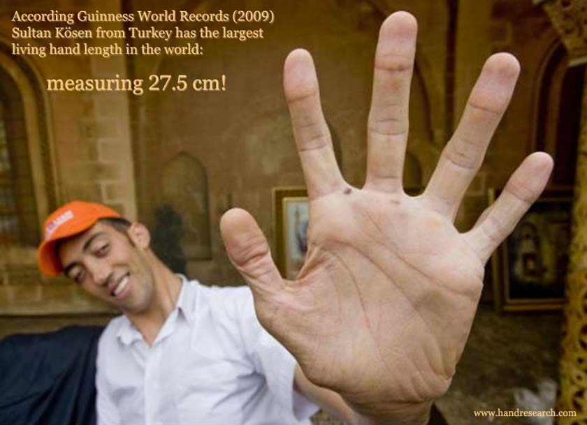 Guinness World Records: Sultan K�sen has the world's largest living hand!