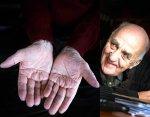 Psychic & healer Joralf Gjerstad has a simian line in both hands.