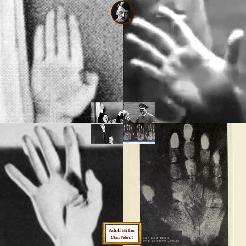 Adolf Hitler hand shape assessment.