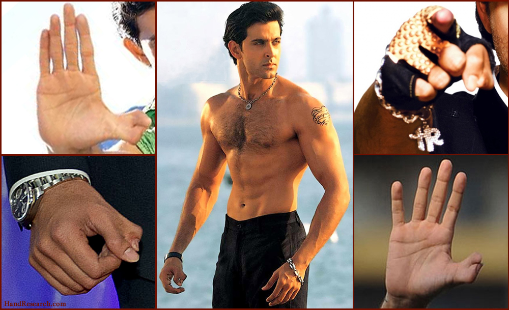Hrithik Roshan thumbs: combination of polydactlyly + syndactyly.