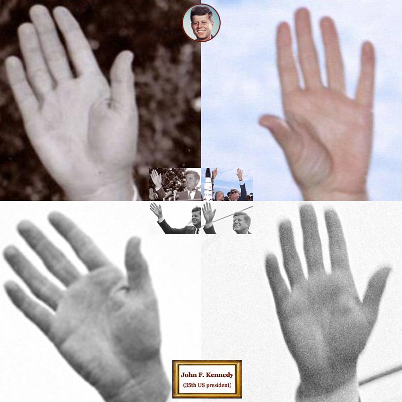 35Th US president John F. Kennedy: 4 hand impressions.