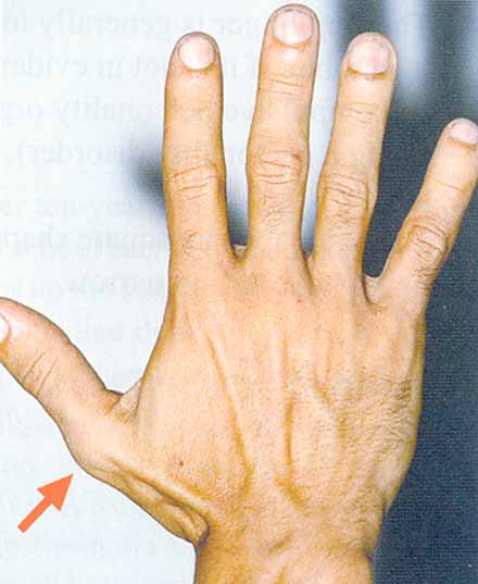 7 Hand characteristics in Obsessive Compulsive Disorder.