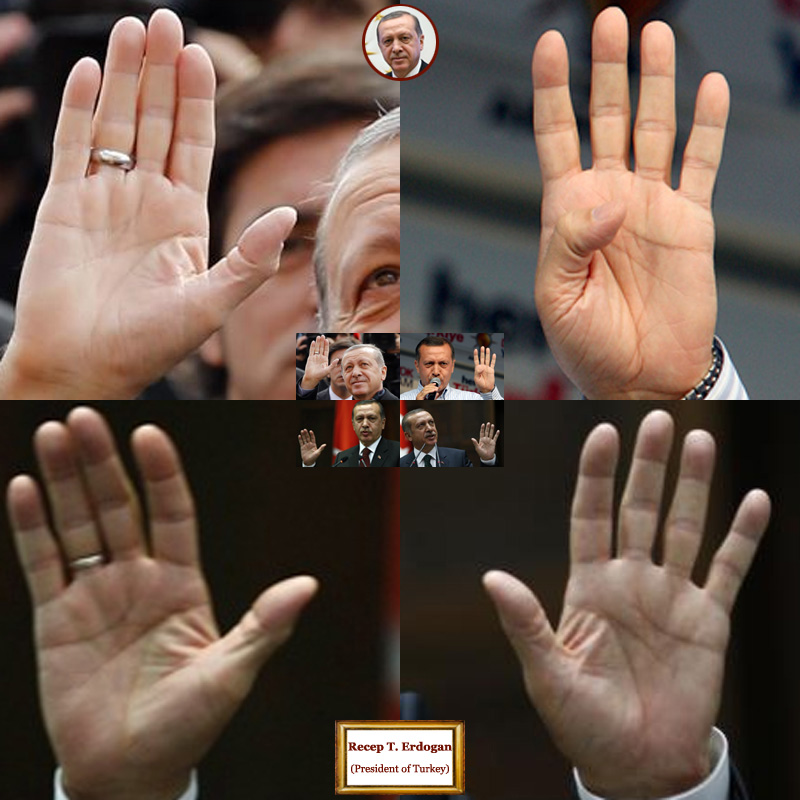 The hands of president of Turkey Recep Tayyip Erdogan: photo impressions.